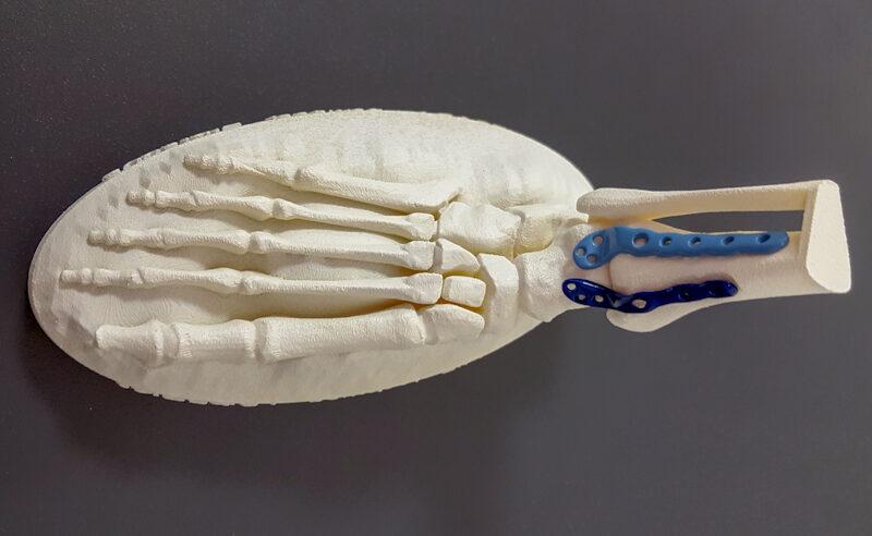 Prototype de prothèse de pied en impression 3d